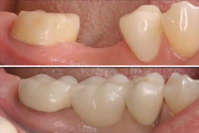 Before & After Dental Bridge