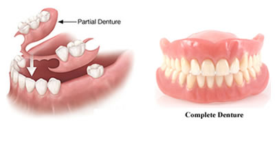 Full & Partial Denture