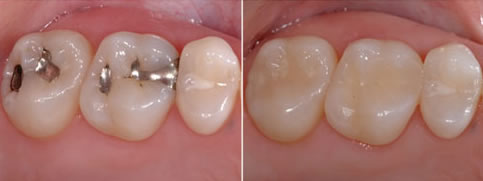 Before & After White Fillings
