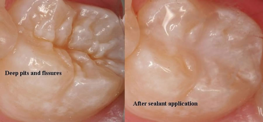 Before & After Dental Sealants
